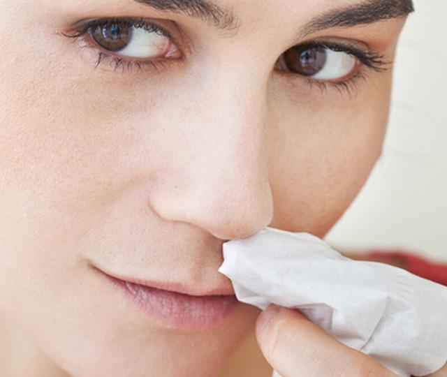 Es una hemorragia nasal un signo de golpe de calor